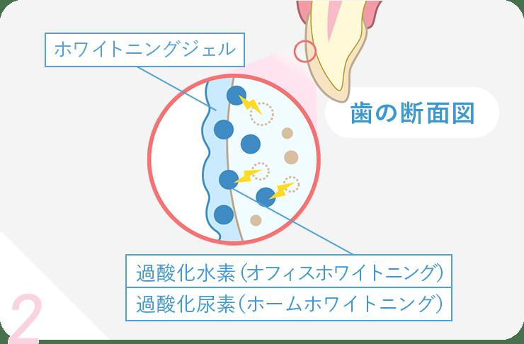 2. 歯の断面積